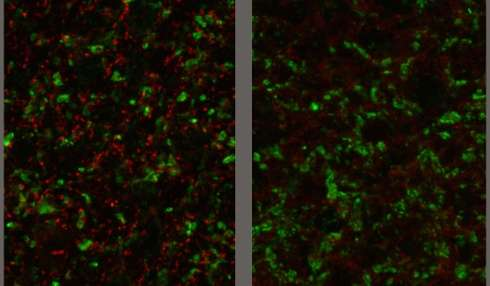 Toxoplasma gondii parasite may alter signaling in the brain