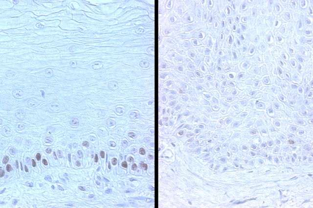 Study finds that a protein that helps suppress cancer fades as we age