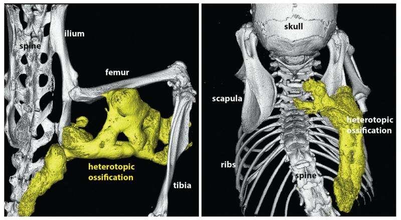 New hope for rare 'stone man' disease, where flesh turns to bone