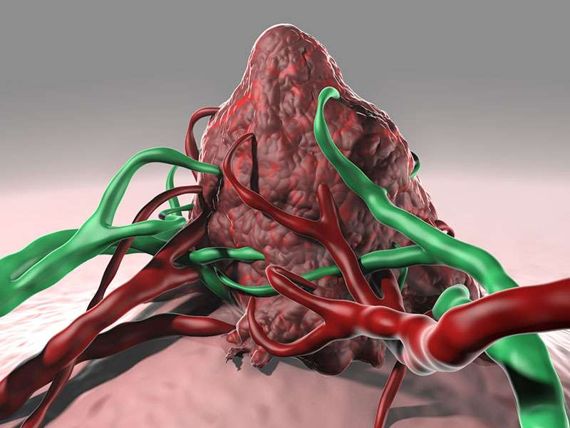 A way to target the Achilles heel of neuroblastoma