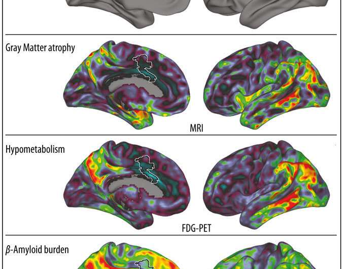 Researchers discover the anatomic reasons for the persistence of musical memory in alzheimer patients