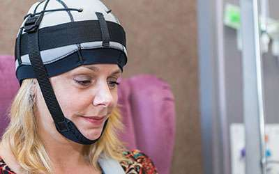 Researchers explain science behind scalp cooling and hair loss in cancer treatment