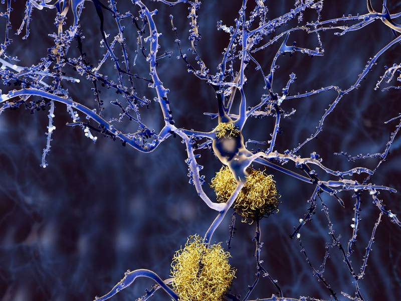 Amyloid plaques in Alzheimer's and diabetes: Novel leads for inhibitors
