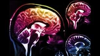 A new tool for understanding Parkinson's disease