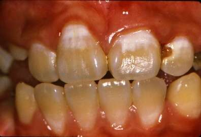 Australian study finds 'no-drill' dentistry stops tooth decay