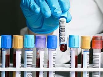 Blood test replaces surgery for bowel tumor assessment