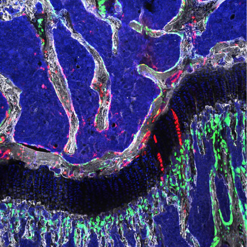 Bone stem cells shown to regenerate bones and cartilage in adult mice