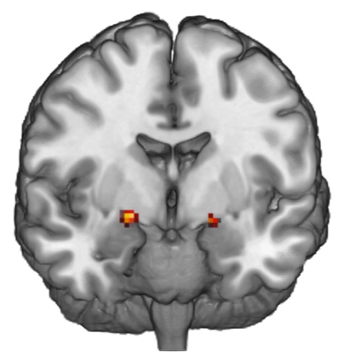 Brain scans explain quickness to blame