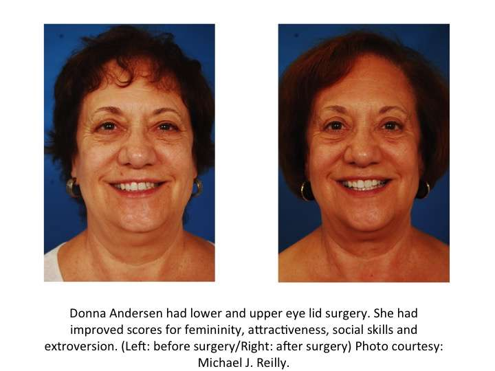 Can facial plastic surgery make you more likeable?