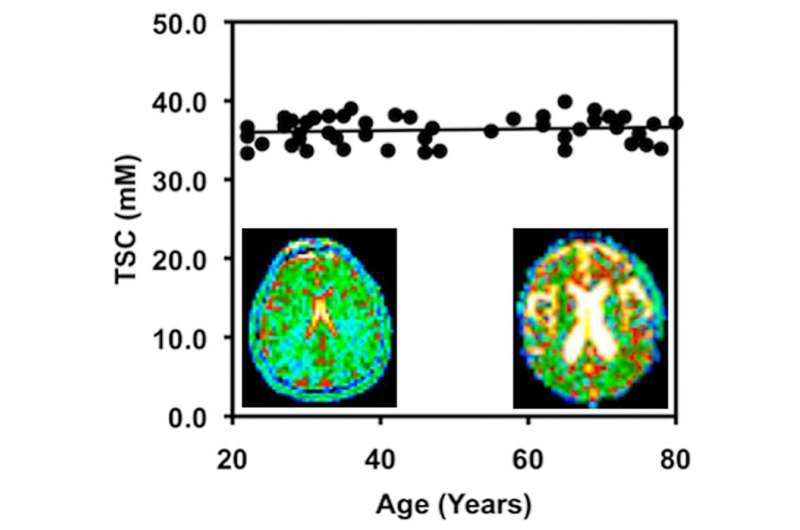 Cell density remains constant as brain shrinks with age