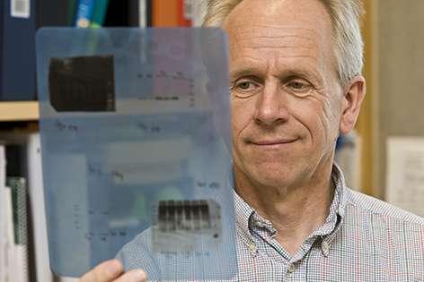 Circadian rhythms regulate skin stem cell metabolism and expansion, study finds