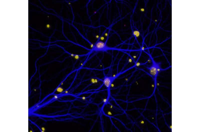 DNA repair protein BRCA1 implicated in cognitive function and dementia