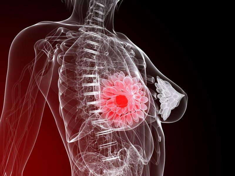 Drugs with directed molecules increase life expectancy by five years in breast cancer patients
