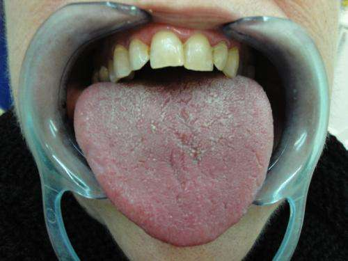 Dry mouth syndrome can be a symptom of asthma