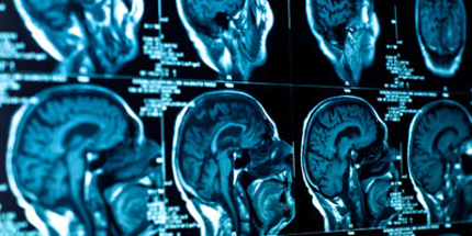 Earlier distinction between Alzheimer's disease and frontotemporal dementia