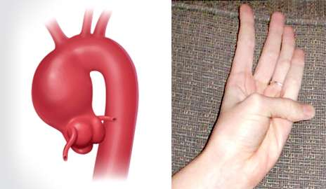 Experts say 'guilt by association' approach helps detect silent aneurysms