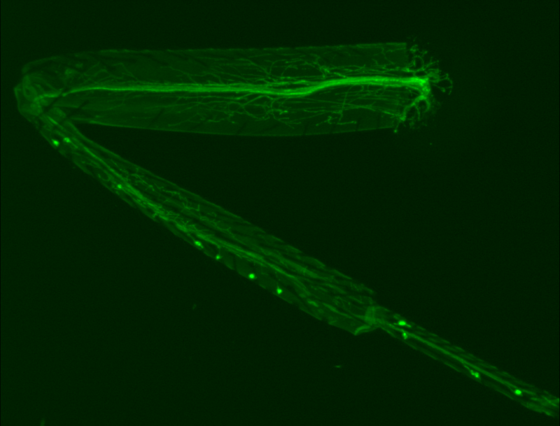 Fly model of motor neuron degeneration provides new avenues for exploration in humans