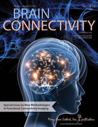 Focal epileptic seizures linked to abnormalities in 3 main brain regions