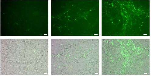 From stem cell to nerve cell in a few weeks