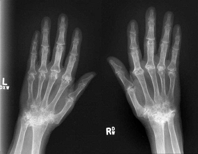 Gene regulating severity of tissue damage caused by rheumatoid arthritis identified