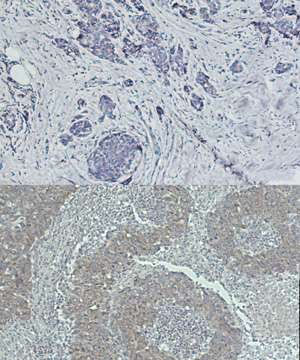 Gene that inhibits tumor growth is shown to promote aggressive breast cancers