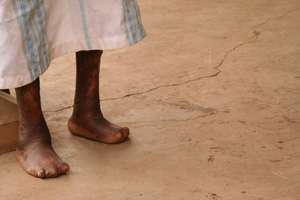 Genome-wide association study identifies six new susceptibility loci tied to the age-old disease of leprosy