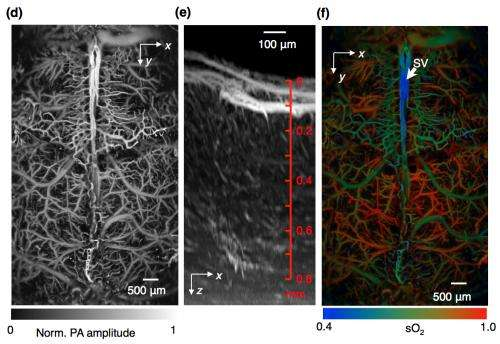 High-tech method allows rapid imaging of functions in living brain