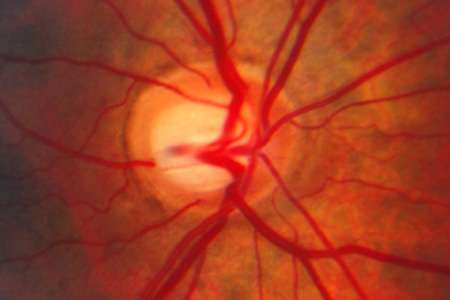 Identified genetic interaction offers possible new target for glaucoma therapy