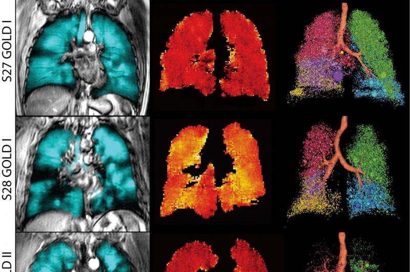 Imaging could improve treatment of people with COPD