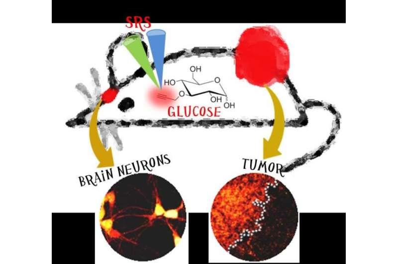 Imaging glucose uptake activity inside single cells