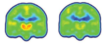Imaging study finds first evidence of neuroinflammation in brains of chronic pain patients