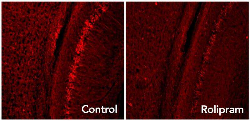Improving brain's garbage disposal may slow Alzheimer's and other neurodegenerative diseases
