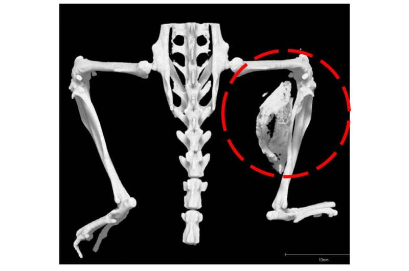 Inflammation is associated with bone growth