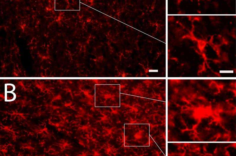 Laboratory research mimics blast-induced brain trauma in soldiers