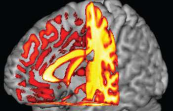 Links found between blood type and risk of cognitive decline