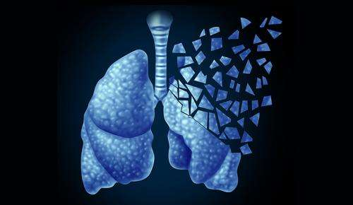 Liquid biopsy provides real-time blood test for solid lung cancer tumors