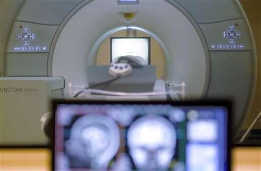 Male vs. female brain? Not a valid distinction, study says