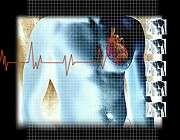 Modest relation between HbA1c, cardiovascular events