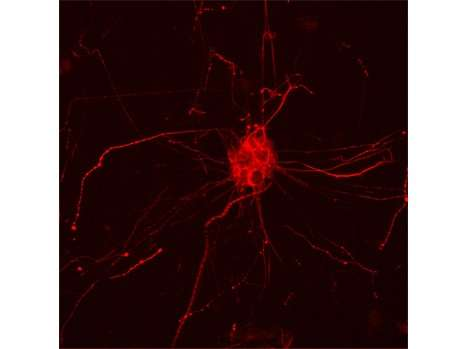 Modulation of brain cholesterol: A new line of research in Alzheimer's disease treatment?