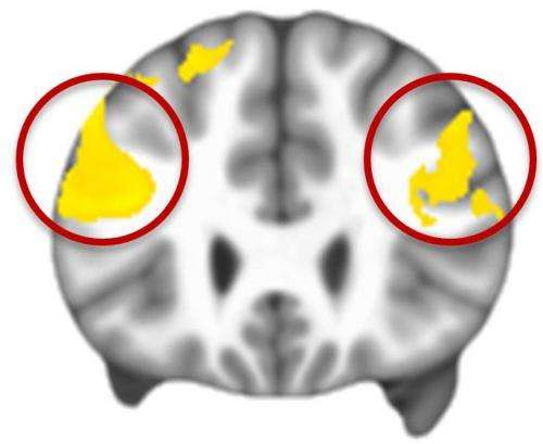 MRIs link impaired brain activity to inability to regulate emotions in autism