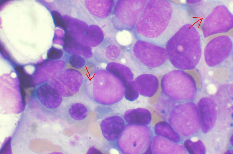 Researchers discover mechanism to overcome drug-resistance in leukemia thumbnail