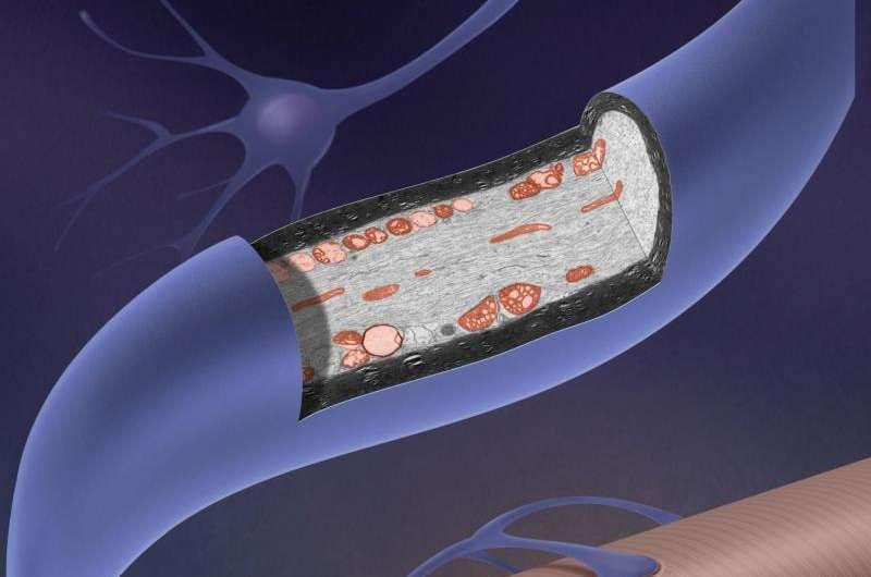 Neurons' broken machinery piles up in ALS