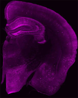 New dru candidate ameliorates Alzheimer's and other brain diseases