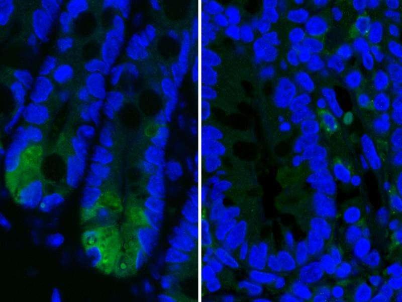 Novel mechanism for Crohn's disease uncovered