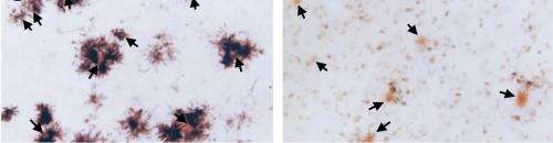 One step closer to defeating Alzheimer's disease
