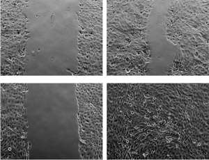 Pain receptors in the skin also play an important role in wound healing