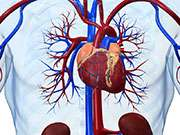 PCI beats medical tx in stable ischemic heart disease