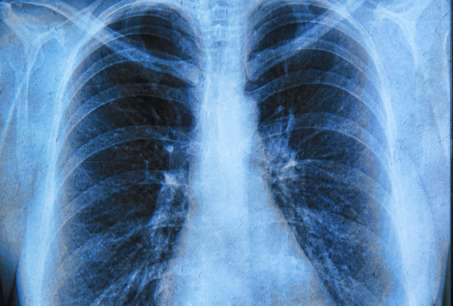 Profiling approach to enable right lung cancer treatment match