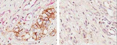 Promising new strategy to halt pancreatic cancer metastasis
