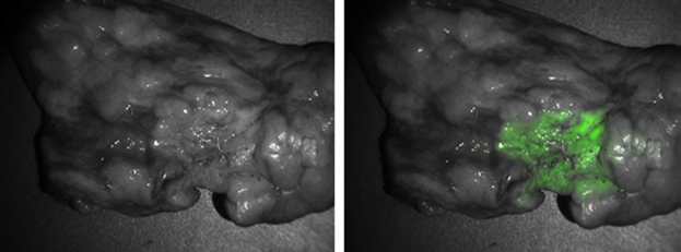 Real-time imaging of lung lesions during surgery helps localize tumors and improve precision